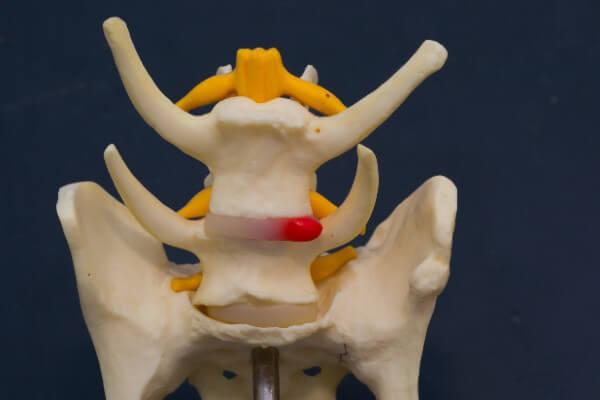 椎間板ヘルニア 犬